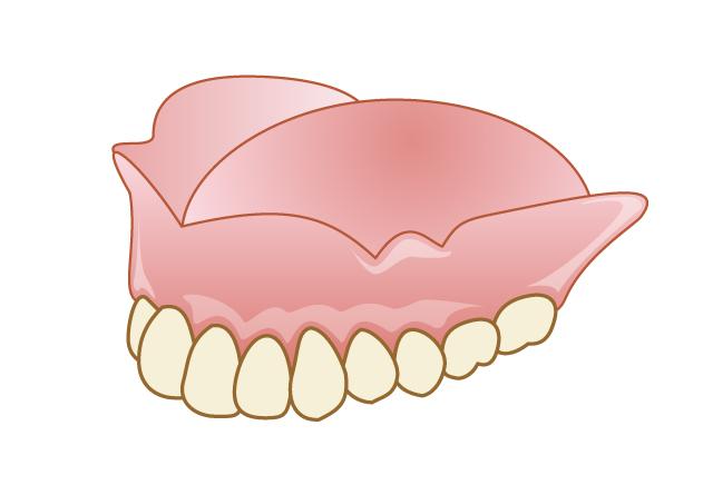 フィットしていない入れ歯|吉祥寺の土日も診療・なお歯科クリニック