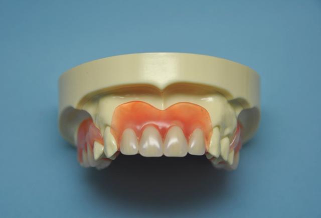 外れない入れ歯|吉祥寺の土日も診療・なお歯科クリニック