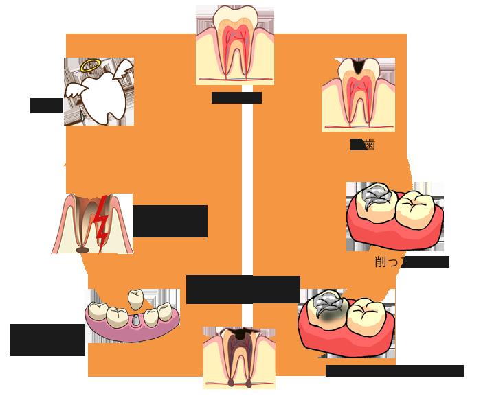 虫歯治療のサイクル|吉祥寺の土日も診療・なお歯科クリニック