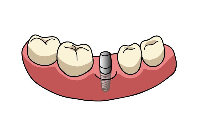 失った歯を補うインプラント|吉祥寺の土日も診療・なお歯科クリニック