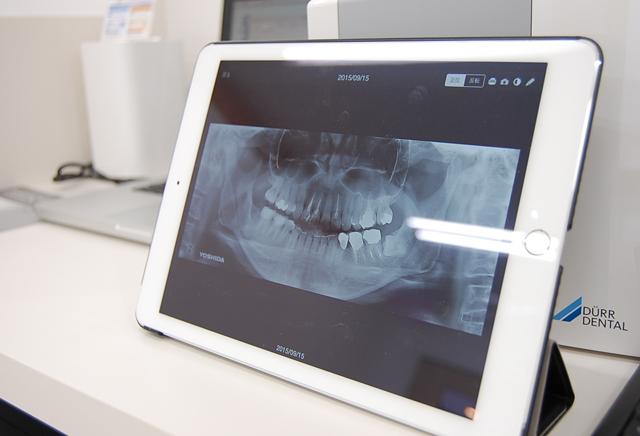 虫歯になったら治療したほうがいい場合|吉祥寺の土日も診療・なお歯科クリニック